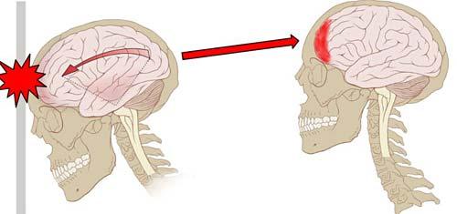 concussion-impact_img